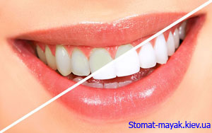 Отбеливание зубов от Stomat Mayak