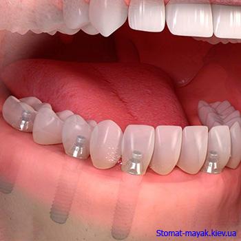 Имплантация и удаление зубов на Троещине Stomat-mayak.kiev.ua