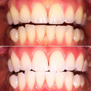 Лазерное отбеливание зубов до и после - https://stomat-mayak.kiev.ua/