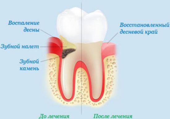 Лечение гингивита - https://stomat-mayak.kiev.ua/